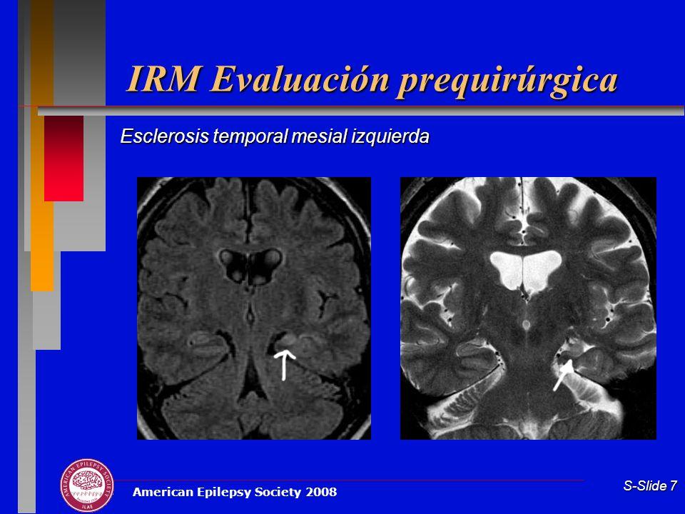 American Epilepsy Society 2008 S-Slide 7 IRM Evaluación prequirúrgica Esclerosis temporal mesial izquierda