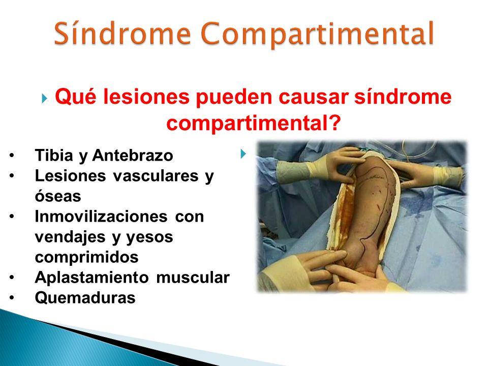 Qué lesiones pueden causar síndrome compartimental? Tibia y Antebrazo Lesiones vasculares y óseas Inmovilizaciones con vendajes y yesos comprimidos Ap