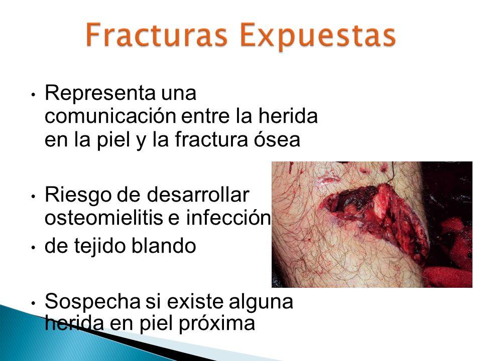 Representa una comunicación entre la herida en la piel y la fractura ósea Riesgo de desarrollar osteomielitis e infección de tejido blando Sospecha si