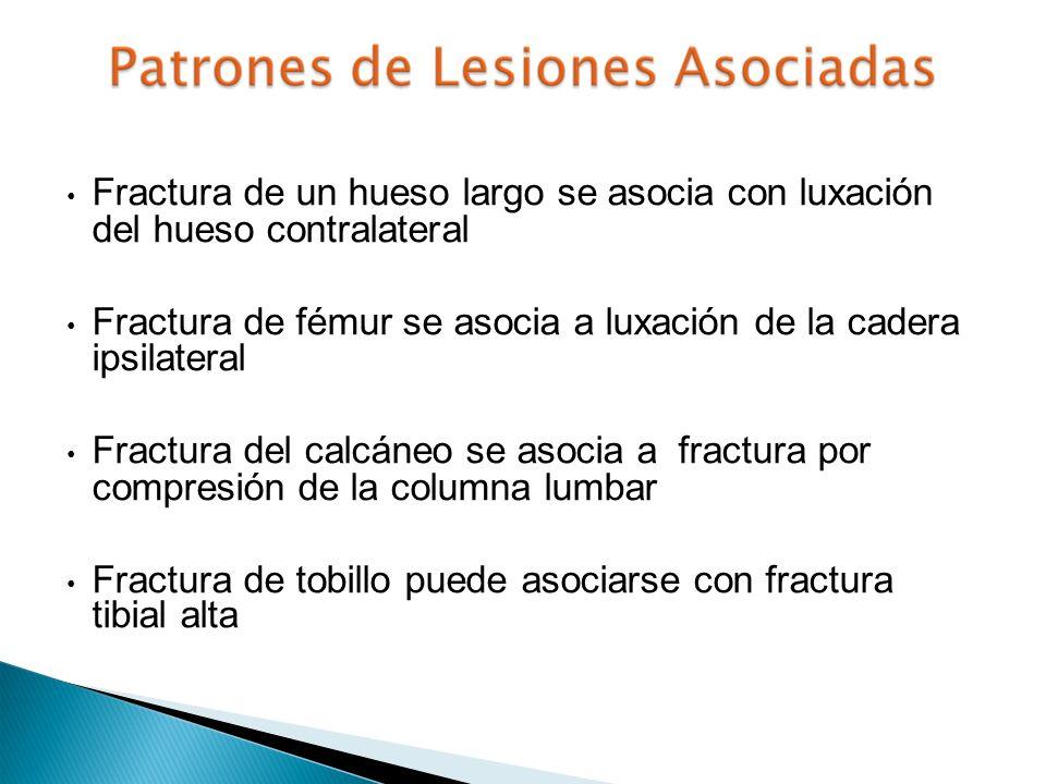 Fractura de un hueso largo se asocia con luxación del hueso contralateral Fractura de fémur se asocia a luxación de la cadera ipsilateral Fractura del