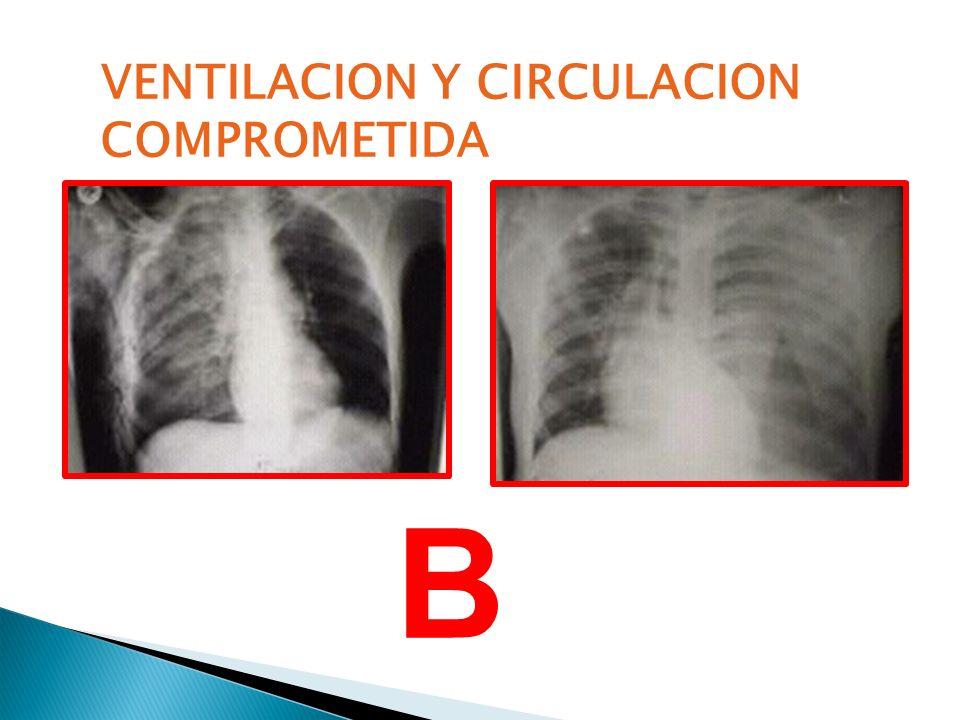 VENTILACION Y CIRCULACION COMPROMETIDA B