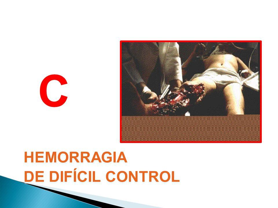 HEMORRAGIA DE DIFÍCIL CONTROL HEMORRAGIA DE DIFÍCIL CONTROL C