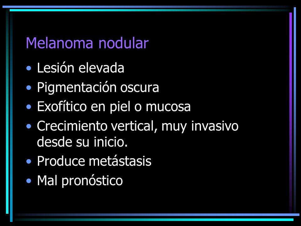 Melanoma nodular Lesión elevada Pigmentación oscura Exofítico en piel o mucosa Crecimiento vertical, muy invasivo desde su inicio. Produce metástasis