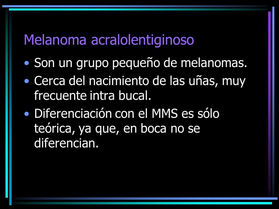 Melanoma acralolentiginoso Son un grupo pequeño de melanomas. Cerca del nacimiento de las uñas, muy frecuente intra bucal. Diferenciación con el MMS e