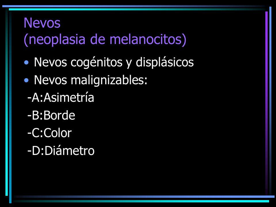 Nevos (neoplasia de melanocitos) Nevos cogénitos y displásicos Nevos malignizables: -A:Asimetría -B:Borde -C:Color -D:Diámetro