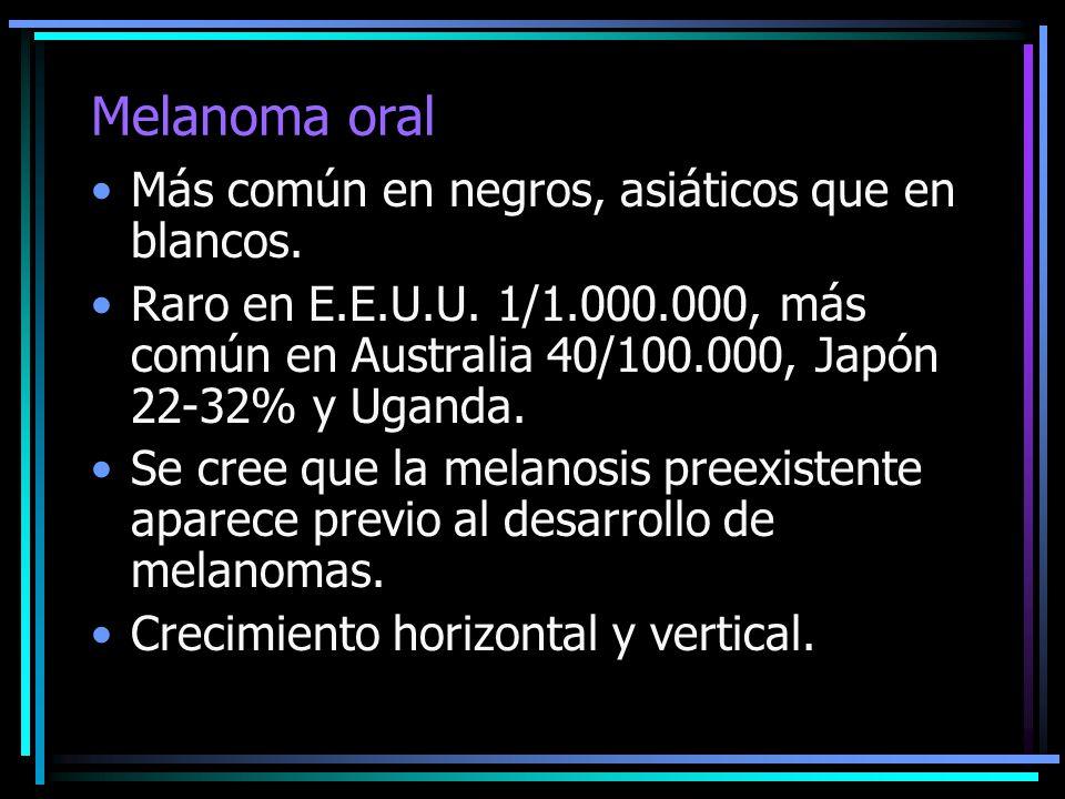 Melanoma oral Más común en negros, asiáticos que en blancos. Raro en E.E.U.U. 1/1.000.000, más común en Australia 40/100.000, Japón 22-32% y Uganda. S