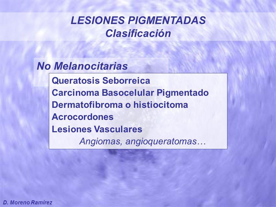 ABCDE del diagnóstico de Melanoma A  Asimetría B  Bordes irregulares C  Colores variados D  Diámetro aumentado E  Evolución reciente LESIONES PIGMENTADAS D.