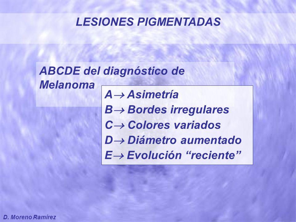 Nevo Clínicamente Atípico A.Asimétrico B. Bordes irregulares C.