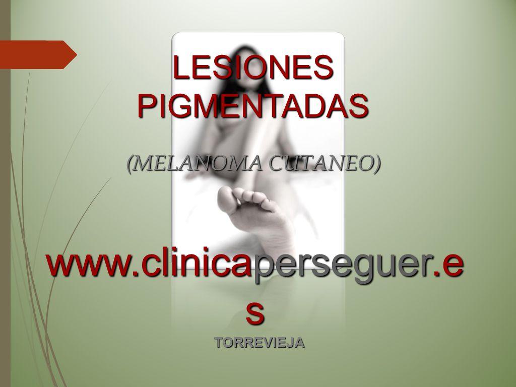 www.clinicaperseguer.e s TORREVIEJA LESIONESPIGMENTADAS (MELANOMA CUTANEO)
