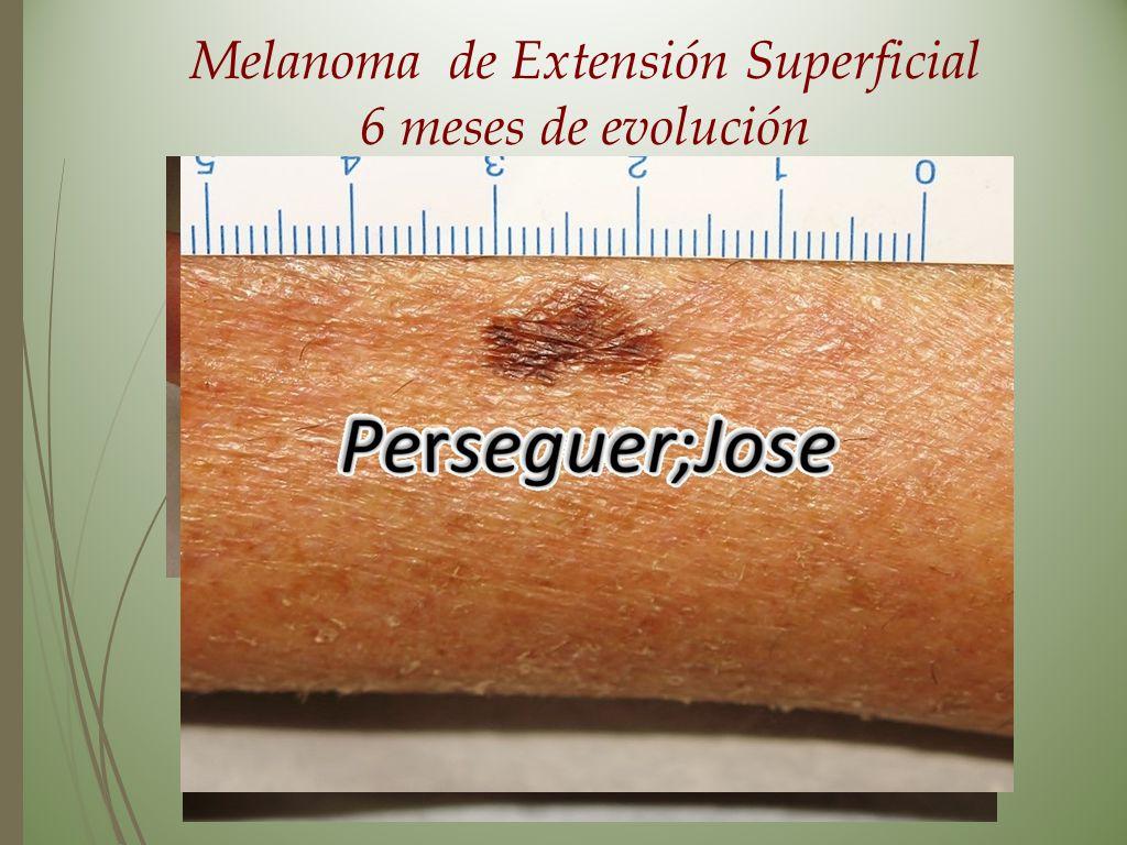 Melanoma de Extensión Superficial 6 meses de evolución