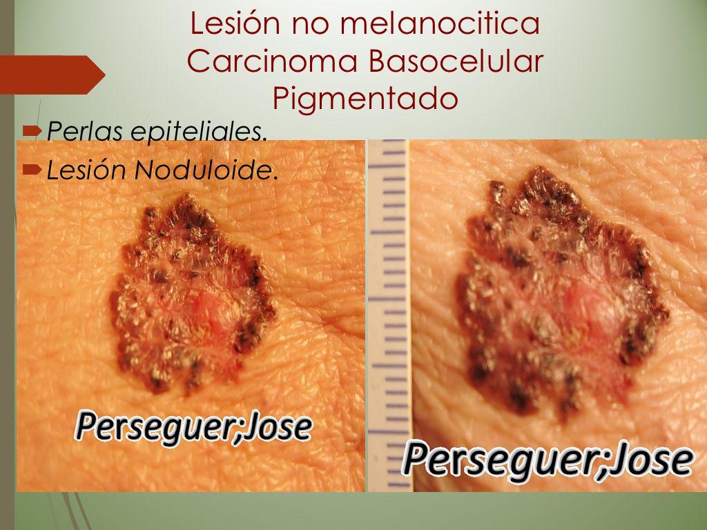 Lesión no melanocitica Carcinoma Basocelular Pigmentado  Perlas epiteliales.  Lesión Noduloide.