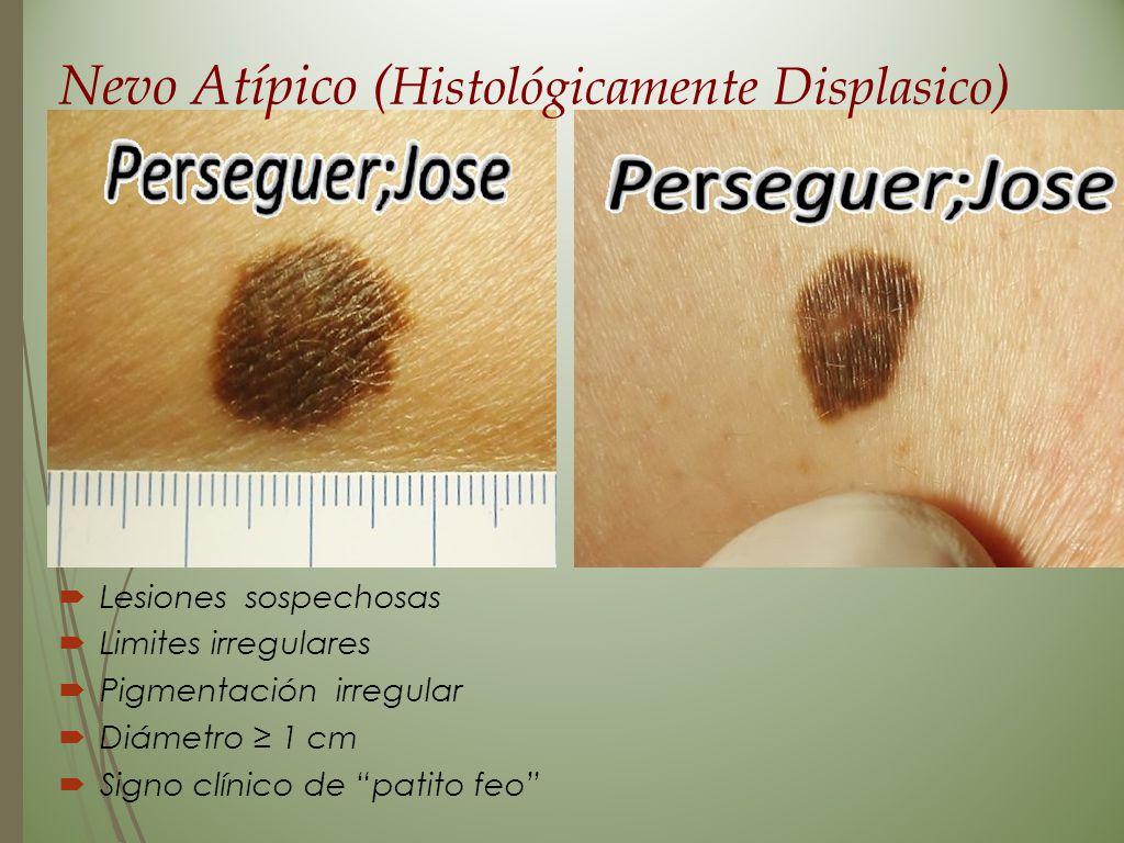 Nevo Atípico ( Histológicamente Displasico )  Lesiones sospechosas  Limites irregulares  Pigmentación irregular  Diámetro ≥ 1 cm  Signo clínico d
