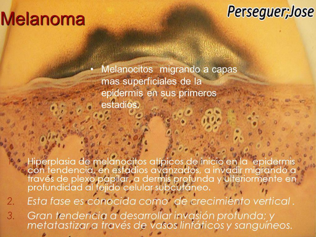 Nevo Atípico ( Histológicamente Displasico )  Lesiones sospechosas  Limites irregulares  Pigmentación irregular  Diámetro ≥ 1 cm  Signo clínico de patito feo