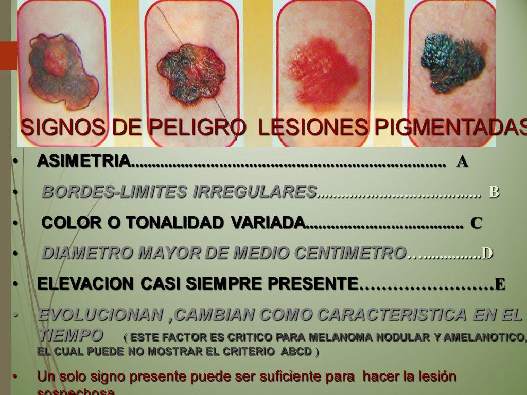 CLINICA BENIGNA LESIONES PIGMENTADAS SIMETRIA SIMETRIA COLOR UNIFORME COLOR UNIFORME LIMITES REGULARES LIMITES REGULARES MENOR DE MEDIO CENTIMETRO MENOR DE MEDIO CENTIMETRO