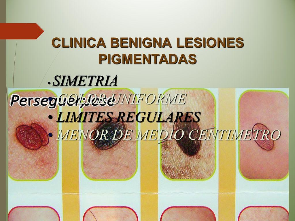 CLINICA BENIGNA LESIONES PIGMENTADAS SIMETRIA SIMETRIA COLOR UNIFORME COLOR UNIFORME LIMITES REGULARES LIMITES REGULARES MENOR DE MEDIO CENTIMETRO MEN
