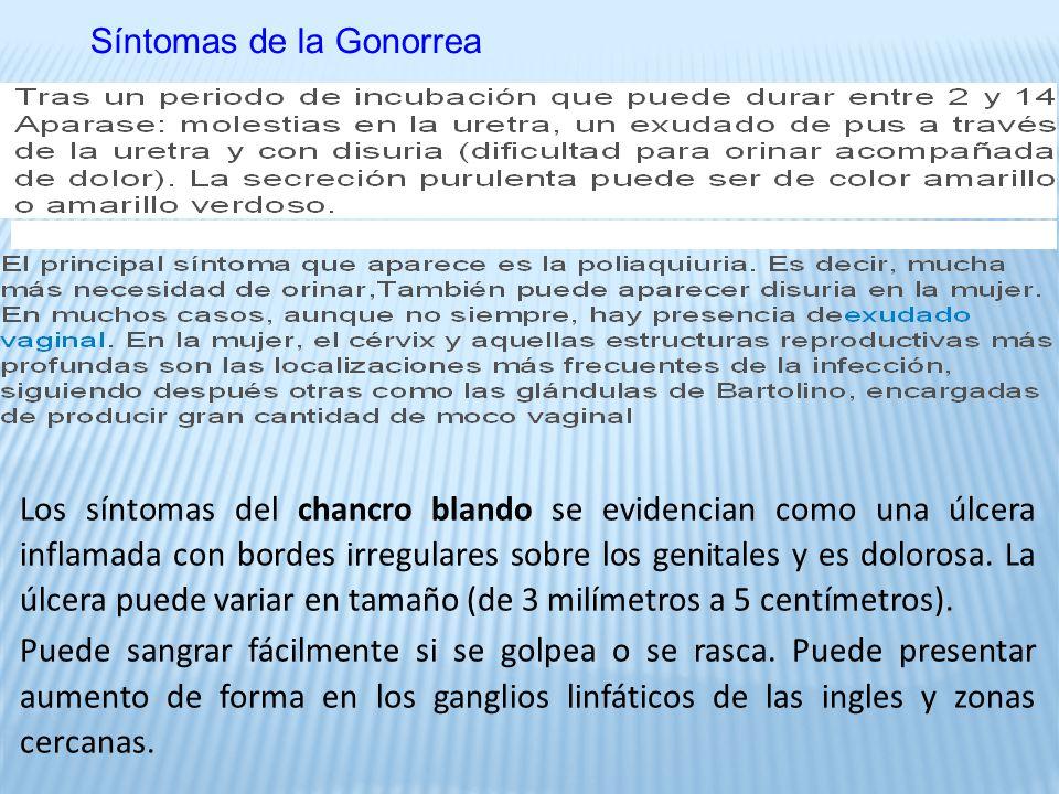 Síntomas de la Gonorrea Los síntomas del chancro blando se evidencian como una úlcera inflamada con bordes irregulares sobre los genitales y es dolorosa.