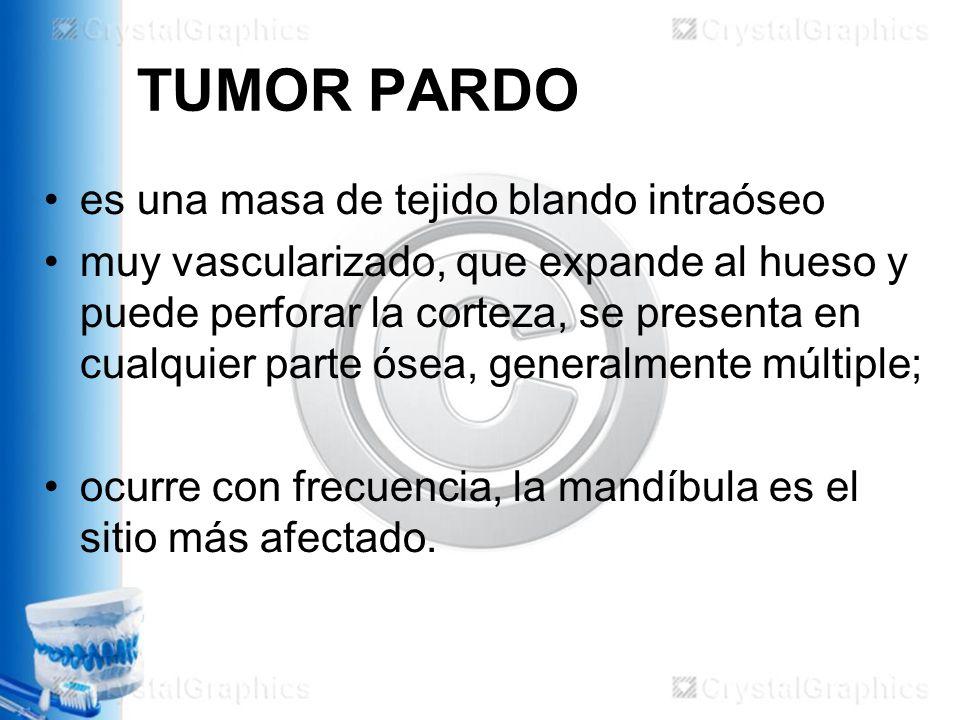 TUMOR PARDO es una masa de tejido blando intraóseo muy vascularizado, que expande al hueso y puede perforar la corteza, se presenta en cualquier parte ósea, generalmente múltiple; ocurre con frecuencia, la mandíbula es el sitio más afectado.