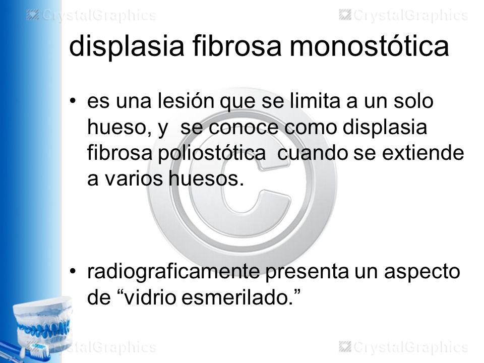 displasia fibrosa monostótica es una lesión que se limita a un solo hueso, y se conoce como displasia fibrosa poliostótica cuando se extiende a varios huesos.