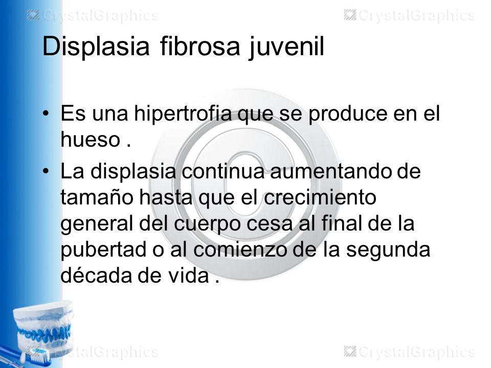 Displasia fibrosa juvenil Es una hipertrofia que se produce en el hueso.