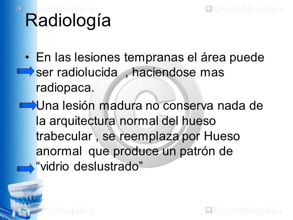 Radiología En las lesiones tempranas el área puede ser radiolucida, haciendose mas radiopaca.