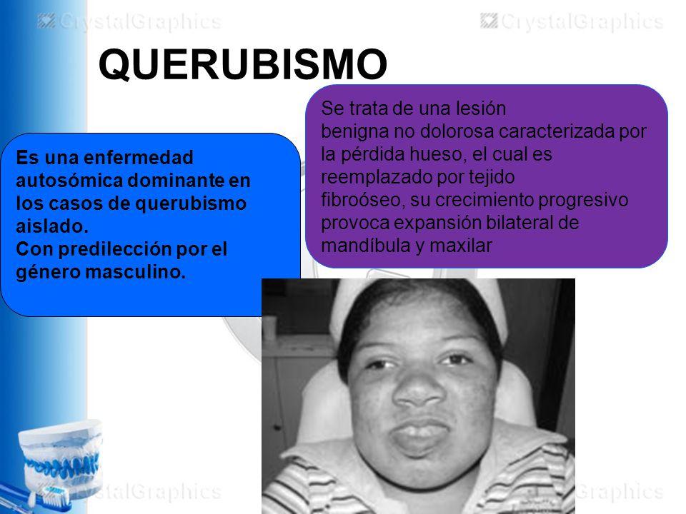 QUERUBISMO Es una enfermedad autosómica dominante en los casos de querubismo aislado.