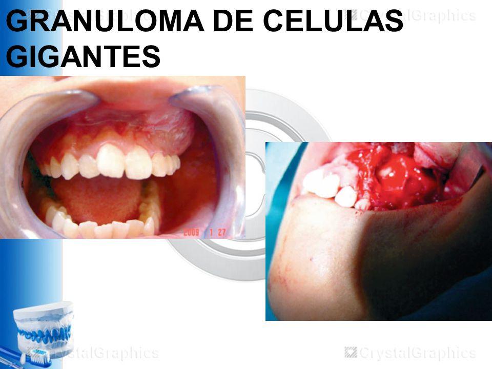 GRANULOMA DE CELULAS GIGANTES