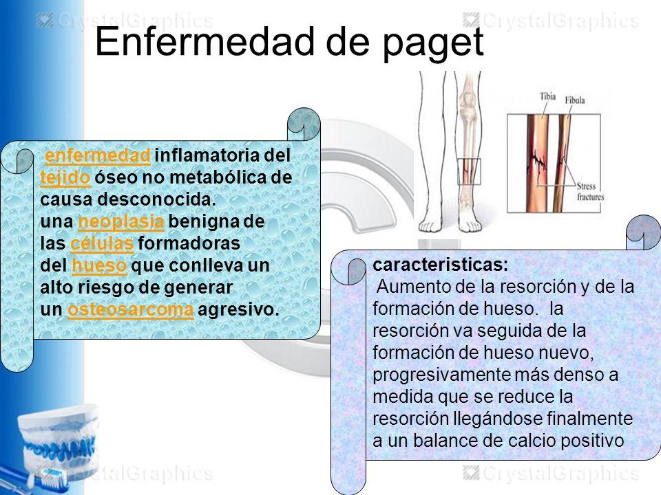 Enfermedad de paget enfermedad inflamatoria del tejido óseo no metabólica de causa desconocida.