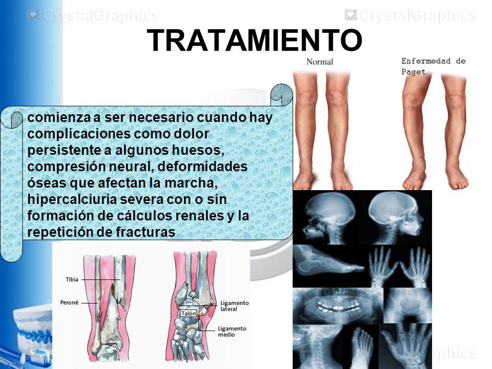 TRATAMIENTO comienza a ser necesario cuando hay complicaciones como dolor persistente a algunos huesos, compresión neural, deformidades óseas que afectan la marcha, hipercalciuria severa con o sin formación de cálculos renales y la repetición de fracturas