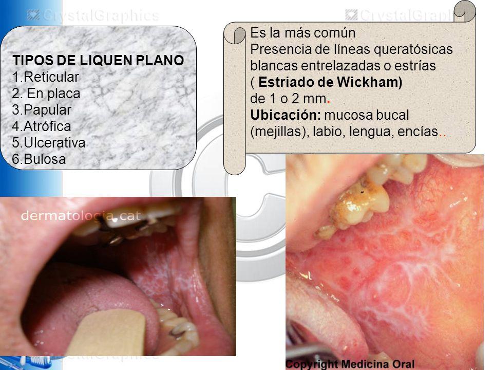 TIPOS DE LIQUEN PLANO 1.Reticular 2.
