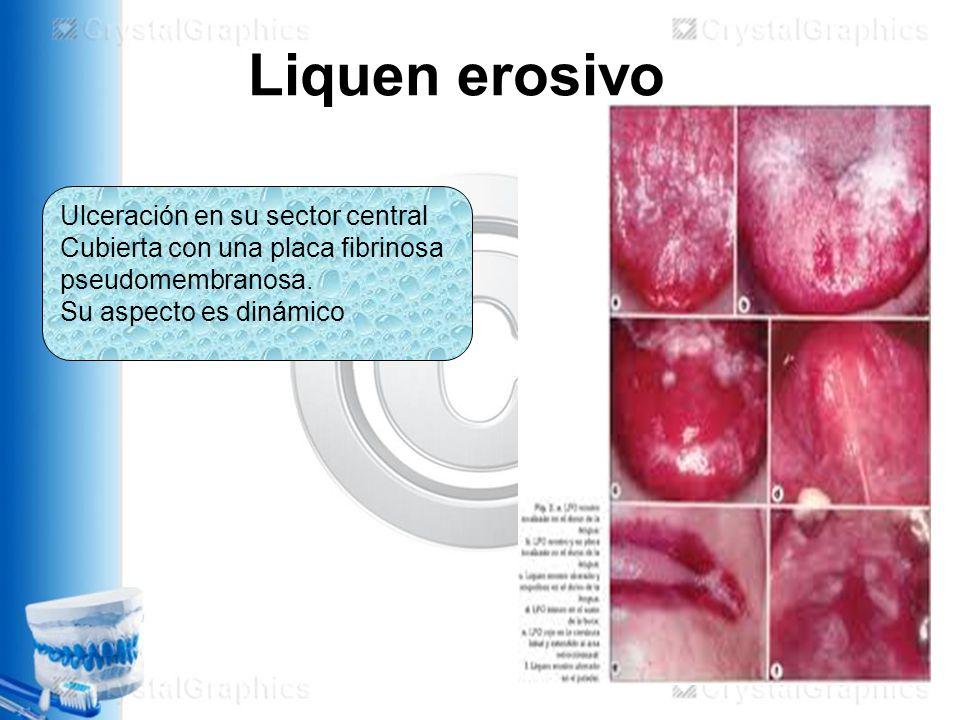 Liquen erosivo Ulceración en su sector central Cubierta con una placa fibrinosa pseudomembranosa.