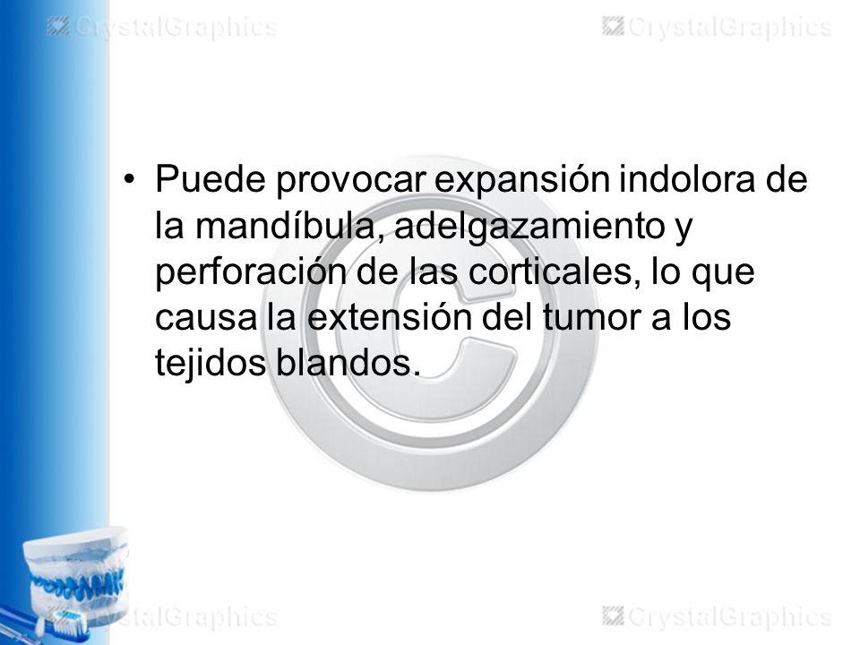 Puede provocar expansión indolora de la mandíbula, adelgazamiento y perforación de las corticales, lo que causa la extensión del tumor a los tejidos blandos.