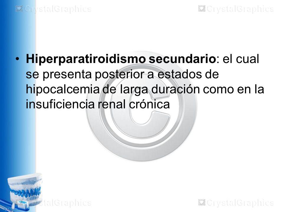 Enfermedad de órganos mayores Lupus cerebral : –Probablemente sobrediagnosticado.