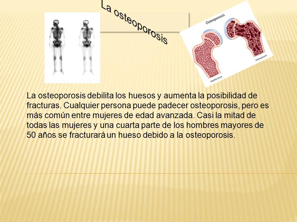 La osteoporosis debilita los huesos y aumenta la posibilidad de fracturas.