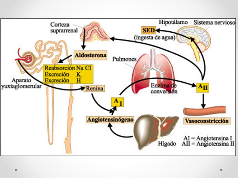 Alteración del Sodio Hiponatremia : concentración de sodio en sangre por debajo de 135 mmol/L.