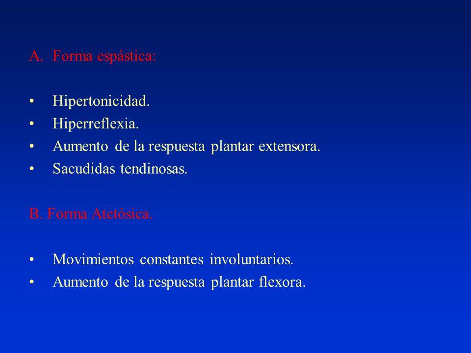 A.Forma espástica: Hipertonicidad. Hiperreflexia.