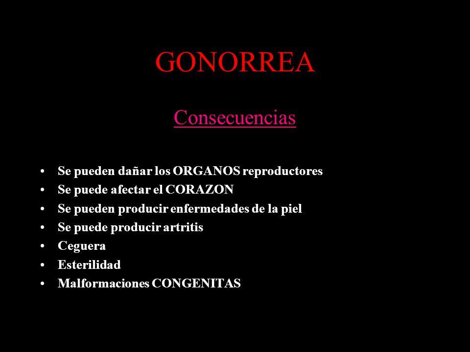 GONORREA Consecuencias Se pueden dañar los ORGANOS reproductores Se puede afectar el CORAZON Se pueden producir enfermedades de la piel Se puede produ