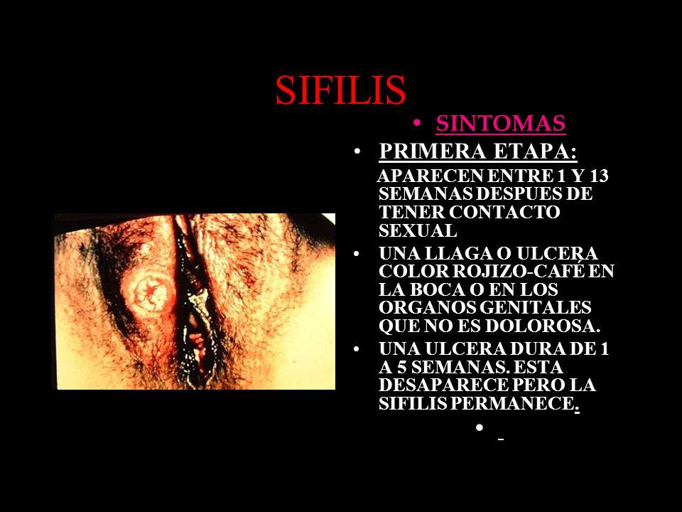 SIFILIS SINTOMAS PRIMERA ETAPA: APARECEN ENTRE 1 Y 13 SEMANAS DESPUES DE TENER CONTACTO SEXUAL UNA LLAGA O ULCERA COLOR ROJIZO-CAFÉ EN LA BOCA O EN LO