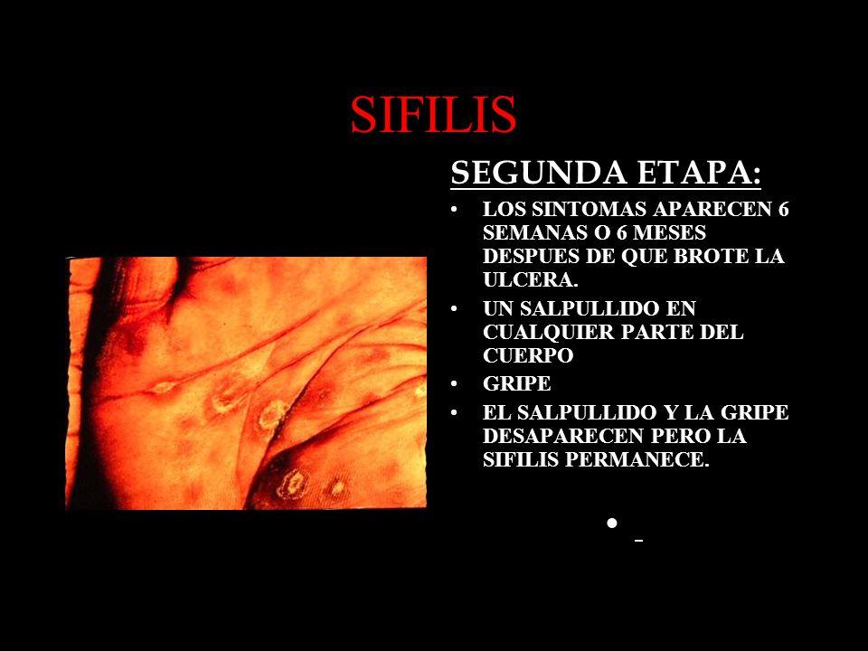SIFILIS SEGUNDA ETAPA: LOS SINTOMAS APARECEN 6 SEMANAS O 6 MESES DESPUES DE QUE BROTE LA ULCERA. UN SALPULLIDO EN CUALQUIER PARTE DEL CUERPO GRIPE EL