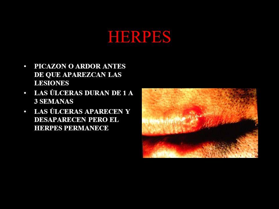 HERPES PICAZON O ARDOR ANTES DE QUE APAREZCAN LAS LESIONES LAS ÚLCERAS DURAN DE 1 A 3 SEMANAS LAS ÚLCERAS APARECEN Y DESAPARECEN PERO EL HERPES PERMAN
