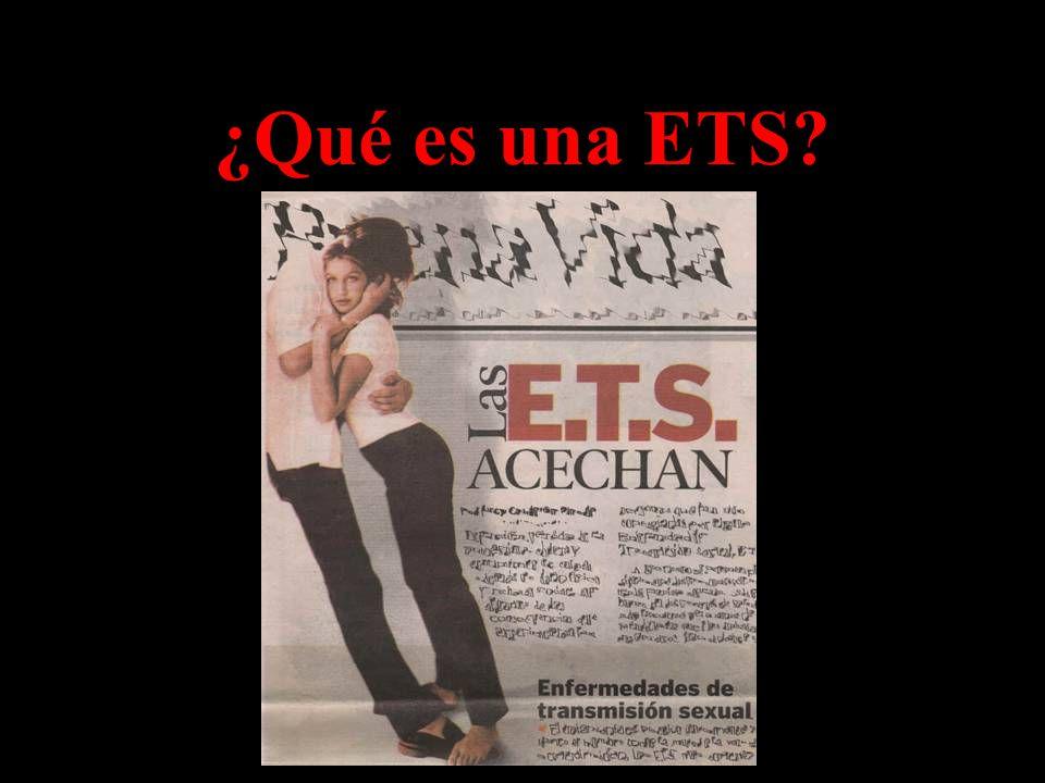 ¿Qué es una ETS?