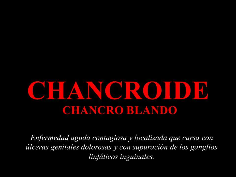 CHANCROIDE CHANCRO BLANDO Enfermedad aguda contagiosa y localizada que cursa con úlceras genitales dolorosas y con supuración de los ganglios linfáticos inguinales.