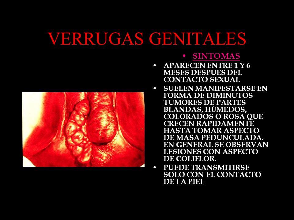 VERRUGAS GENITALES SINTOMAS APARECEN ENTRE 1 Y 6 MESES DESPUES DEL CONTACTO SEXUAL SUELEN MANIFESTARSE EN FORMA DE DIMINUTOS TUMORES DE PARTES BLANDAS, H Ú MEDOS, COLORADOS O ROSA QUE CRECEN RAPIDAMENTE HASTA TOMAR ASPECTO DE MASA PEDUNCULADA.