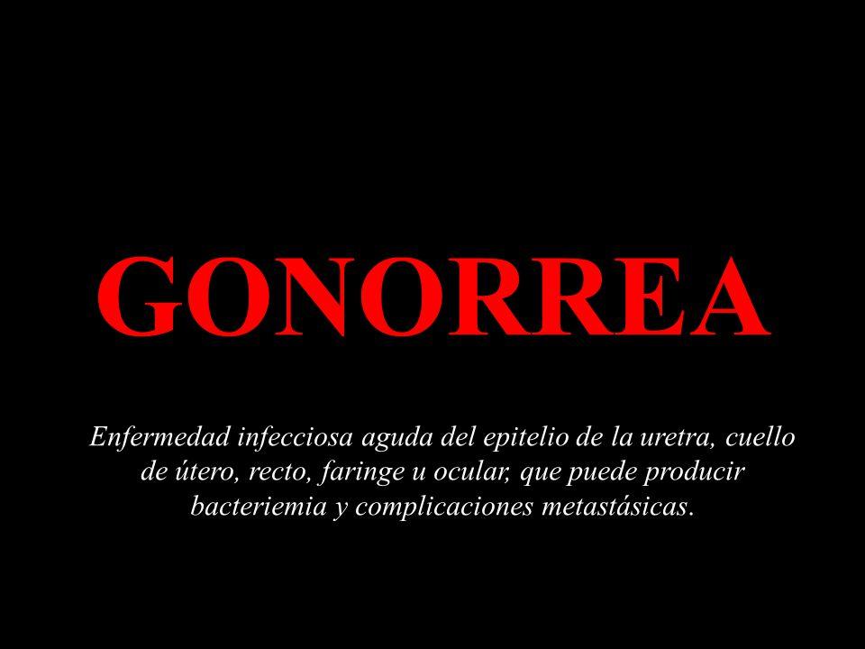 GONORREA Enfermedad infecciosa aguda del epitelio de la uretra, cuello de útero, recto, faringe u ocular, que puede producir bacteriemia y complicaciones metastásicas.