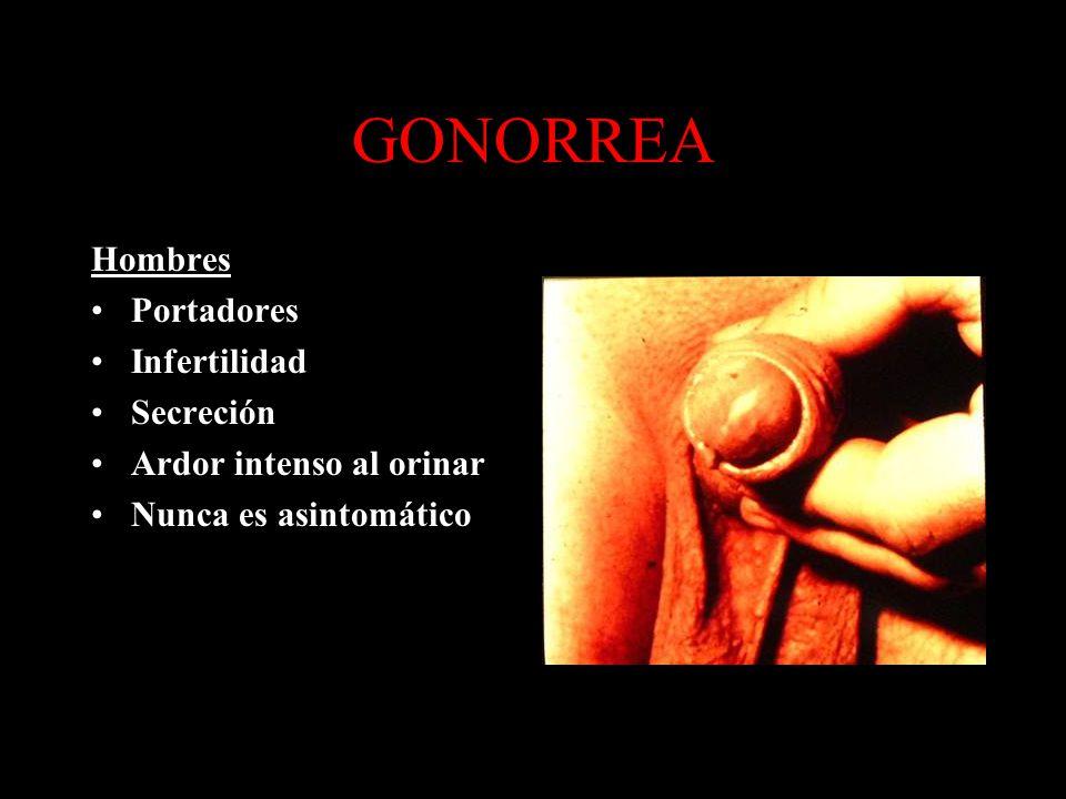 GONORREA Hombres Portadores Infertilidad Secreción Ardor intenso al orinar Nunca es asintomático