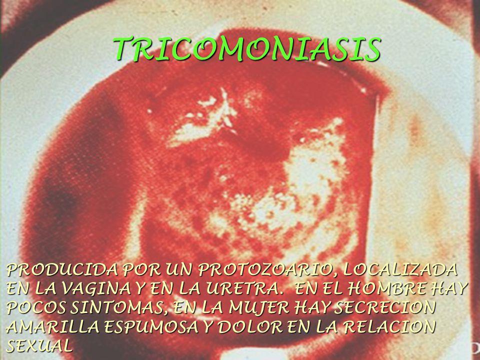 TRICOMONIASIS PRODUCIDA POR UN PROTOZOARIO, LOCALIZADA EN LA VAGINA Y EN LA URETRA. EN EL HOMBRE HAY POCOS SINTOMAS, EN LA MUJER HAY SECRECION AMARILL