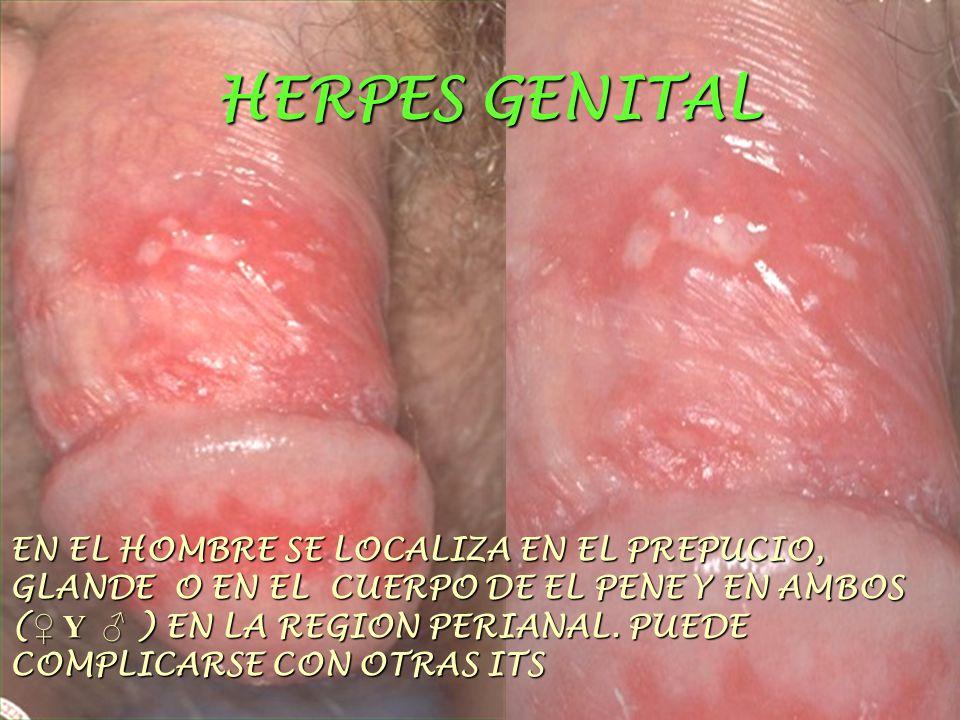 HERPES GENITAL EN EL HOMBRE SE LOCALIZA EN EL PREPUCIO, GLANDE O EN EL CUERPO DE EL PENE Y EN AMBOS ( ♀ Y ♂ ) EN LA REGION PERIANAL.