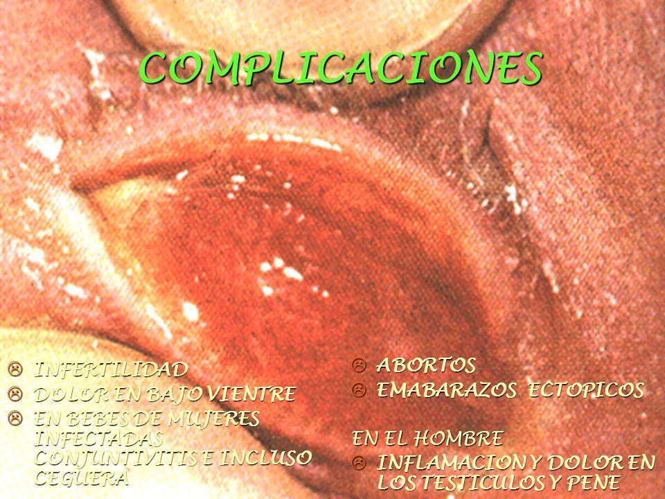 COMPLICACIONES  INFERTILIDAD  DOLOR EN BAJO VIENTRE  EN BEBES DE MUJERES INFECTADAS CONJUNTIVITIS E INCLUSO CEGUERA  ABORTOS  EMABARAZOS ECTOPICOS EN EL HOMBRE  INFLAMACION Y DOLOR EN LOS TESTICULOS Y PENE