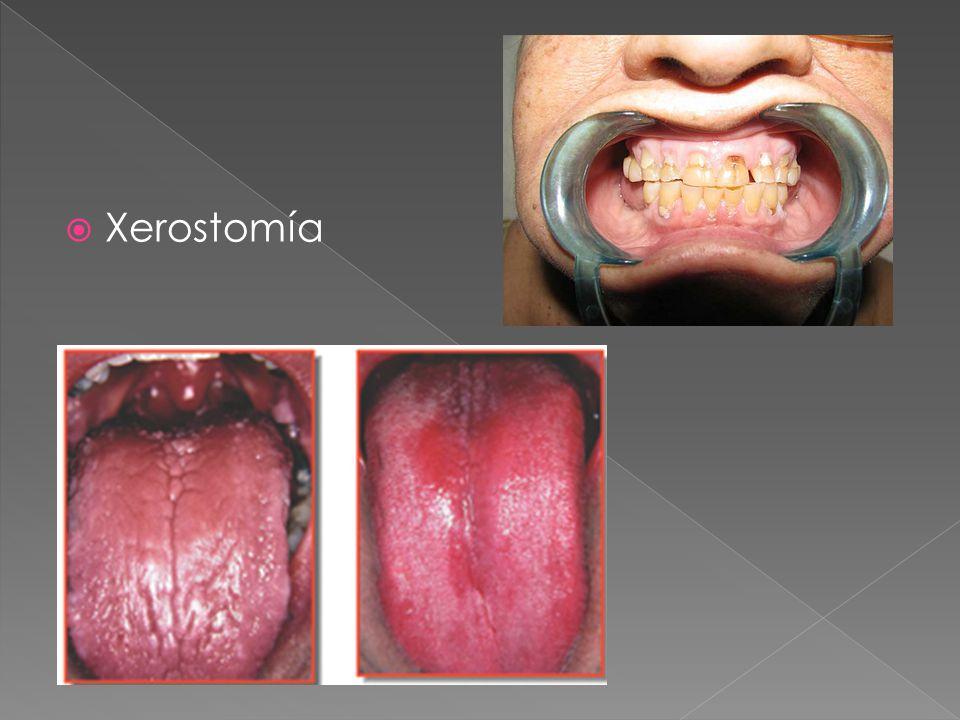 Xerostomía