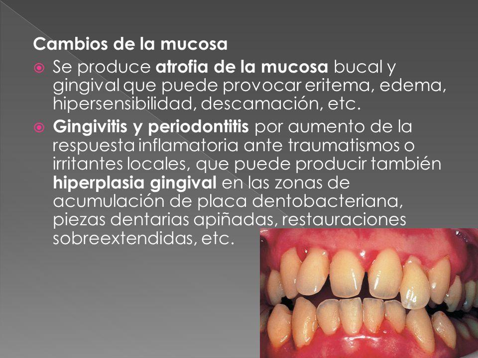 Cambios de la mucosa  Se produce atrofia de la mucosa bucal y gingival que puede provocar eritema, edema, hipersensibilidad, descamación, etc.