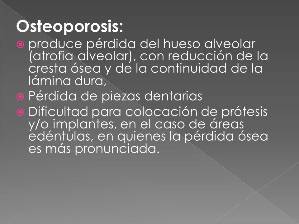 Osteoporosis:  produce pérdida del hueso alveolar (atrofia alveolar), con reducción de la cresta ósea y de la continuidad de la lámina dura,  Pérdida de piezas dentarias  Dificultad para colocación de prótesis y/o implantes, en el caso de áreas edéntulas, en quienes la pérdida ósea es más pronunciada.